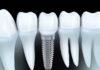 De ce implantul dentar este o solutie reconstructiva optima